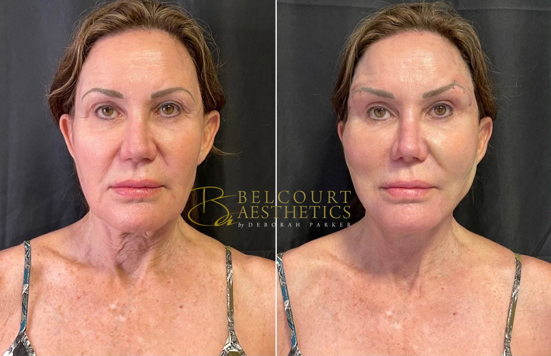 Thread Lift Before & After. After images were taken 15 minutes after procedures. Look at the crows feet, completely gone. Look at the neckline.