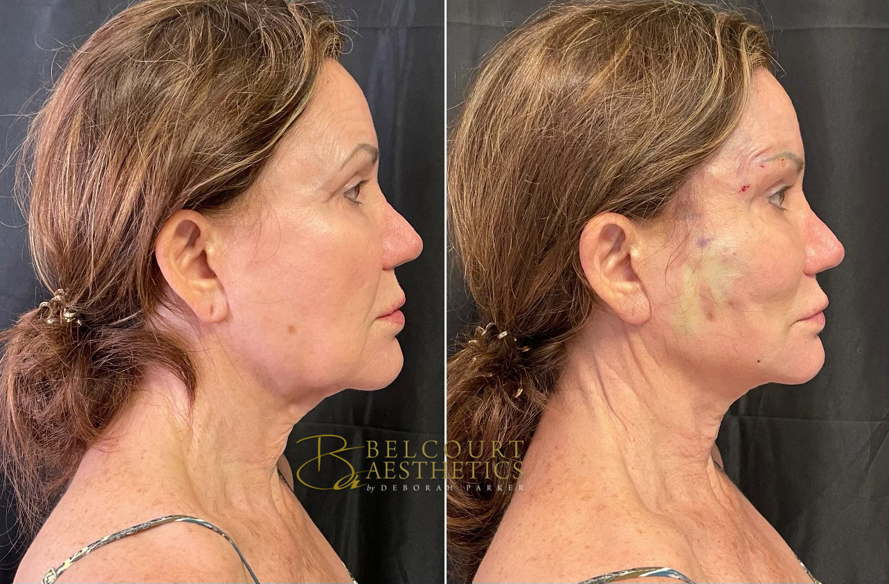 Look at the jawline. Amazing results. (The white coloration on the face is from the lidocaine cream. Entry marks lighten in a matter of hours and disappear in a matter of days for most.)